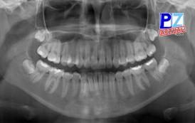 Hospital de Ciudad Neily contará con nuevo equipo de Rayos X para Odontología.