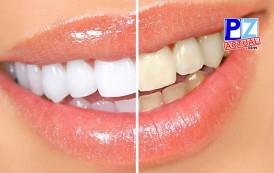 Advierten sobre peligros del uso de blanqueamientos dentales sin antes consultar a un Odontólogo.